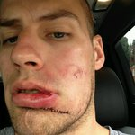 One of the toughest guys I know #warrior #ducks #playoffperformer #saskboy http://t.co/ieVIthEx8D