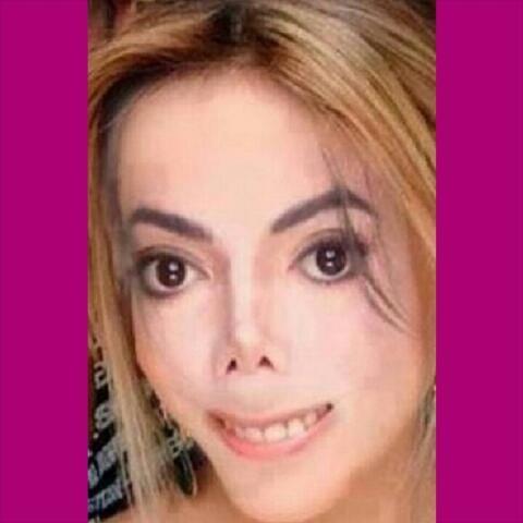 Internautas fazem piada com novo nariz de Anitta, que já fez duas rinoplastias http://t.co/FKBbZBUkkO http://t.co/JaRkZLmmmt