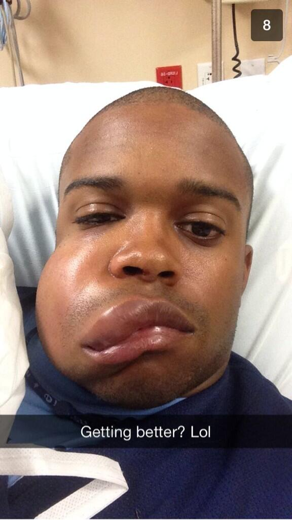 Astros prospect Delino DeShields Jr. got hit in the face with 90-mph FB. Here's what it looks like, from @ctcase10: http://t.co/Kn6YCpHhzv