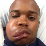 Photo of #Astros Prospect Delino Deshields Jrs face after getting hit by a 90 MPH fastball tonight. PC @ctcase10 http://t.co/o0tZT1PtOn