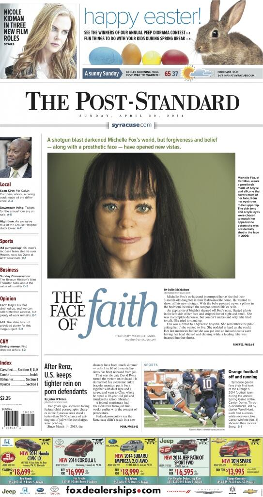 Amazingly brave woman with a prosthetic face, 3-pg story in Sunday @PostStandard http://t.co/KedmtP17is