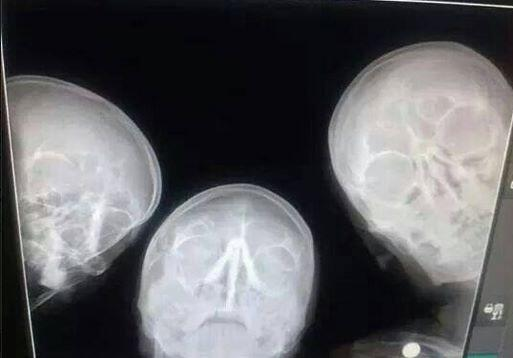 """@upulie: Fantastic RT @IntEngineering: Selfie of radiologists http://t.co/Mu6bYBtO1p"""