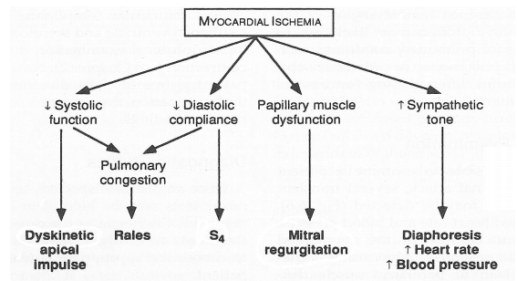 Physical Exam during Myocardial Ischemia:  S4 Murmur of mitral regurgitation Rales Dyskinetic apical impulse  #USMLE http://t.co/N36OrfyXWL