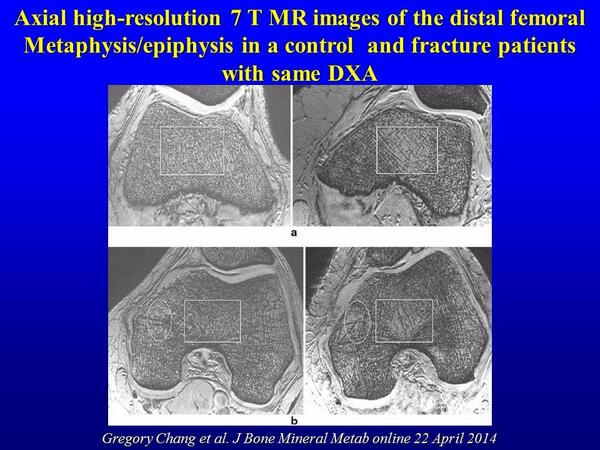7 Tesla #MRI images differ between fragility #fractures and controls where #DXA does not http://t.co/f1xmlg3bk6