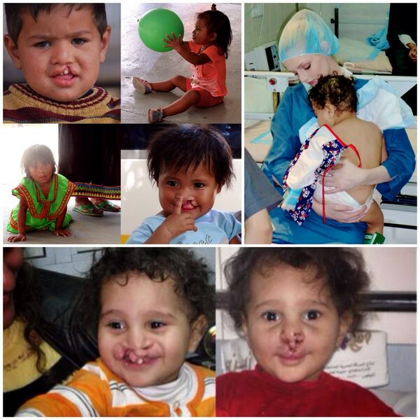 A smile is a smile in every language. #Change Forever @operationsmile - http://t.co/3kh6tNQQ4H http://t.co/nmgpApfgJq