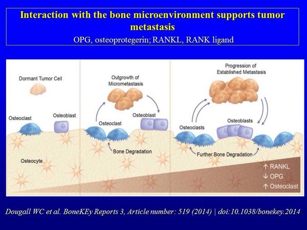 Targeting #RANKL in #bone #metastasis; interaction with the bone microenvironment supports tumor metastasis http://t.co/bfzZTod5VX