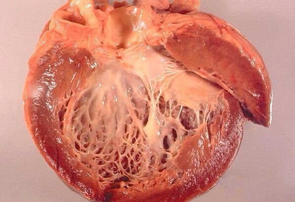 RT @Haneen_Maghrabi: Cardiomyopathy  #pathology #gross #medicine #cardiology http://t.co/2nmXsc1DcJ