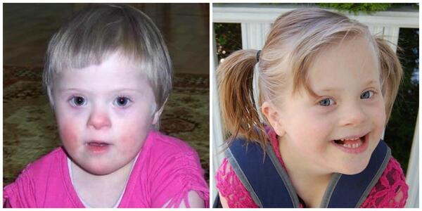 """Even a """"good"""" orphanage doesn't come close as a substitute for the love of a family. @PatriciaHeaton #downsyndrome RT http://t.co/8sAEX22dMr"""