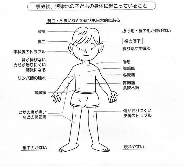 チェルノブイリで起ったことが、福島ではっきりと起っている。 http://t.co/fFvzTVaBgW