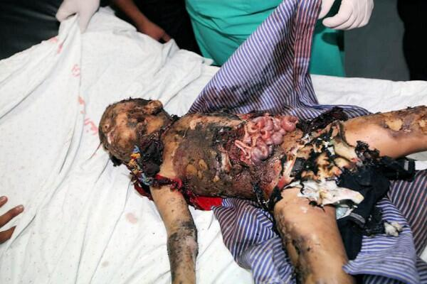 #Israel can no longer hide their war crimes from the eyes of a world. What justifies doing this  to a child? #Gaza http://t.co/gU1RPFD0Lm
