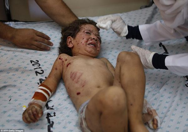 Child being treated in hospital after Israeli attack on #Gaza. 16/07/2014. #Palestine #humanrights Credit: AFP/Getty http://t.co/bdgmK2u47a