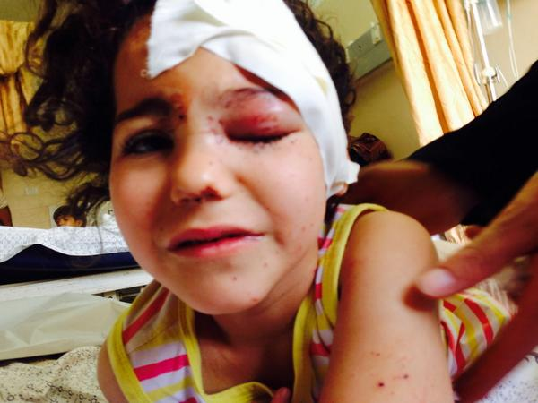 #c4news #Gaza THIS IS UNBEARABLE. 6-yr-old Noora Abu Jarad. She survived a tank shell on her house, which killed 8 http://t.co/xarlXaE4la