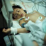Mariam al-Masri, 8, shrapnel in brain after Israeli strike. UN says 77% of Palestinians killed so far are civilians. http://t.co/YNnWdBBhjX