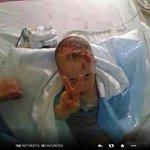 هذه غزة، طفل يصاب في القصف الصهيوني، فيأبي إلا التحدي #غزة_تحت_القصف #غزة_تقاوم http://t.co/8nVNeiYS2E