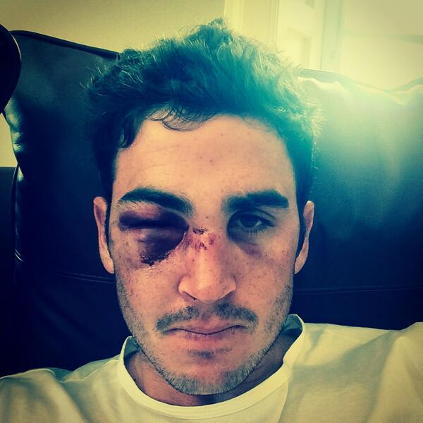 Apparently chicks dig scars...?! #rocky http://t.co/DcGBhp5unN