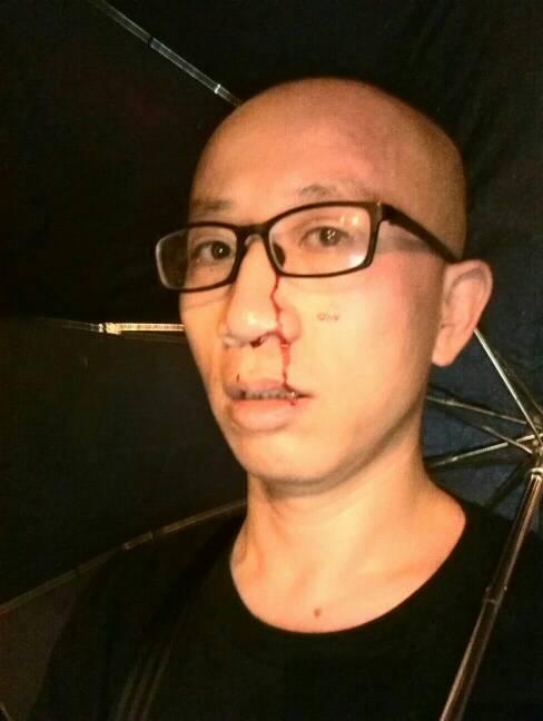 今天7月16日,刚才20:12,我在北京市朝阳区草房地铁站东侧100米路北被若干便衣人员袭击受伤。他们随后驾车离去,我眼镜被打飞未能看清车号。此刻感到身体不适,靠在路边,准备报警。胡佳 #傅政华 #国保档案 http://t.co/ztb1x0IzJk