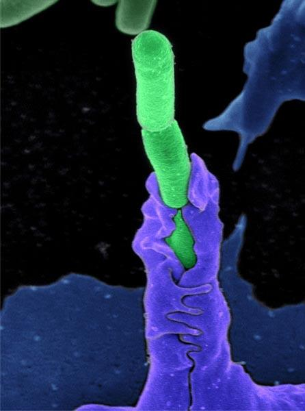 Featured #LifeMagnified image: Anthrax bacteria being swallowed by an immune system cell http://t.co/dLa0HHOBOy http://t.co/h5Pf7rKMak