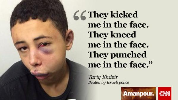 The beating of this American teen by Israeli police helped spark the current crisis: http://t.co/q4PPNd52Xn http://t.co/ClavenTwRj