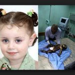 [TERRORIST] Israel killed her. @AvichayAdraee, I guess you are proud of your army!!! killing children savagely. http://t.co/vNtjIQj5HY