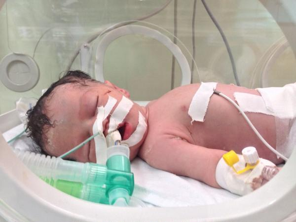 Little baby Shaima. Her mother died in an airstrike.  Drs saved the baby from her womb. #gaza http://t.co/uRnnGOS6CN