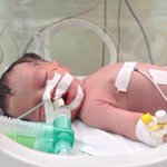 http://t.co/7dXN4XYccr Little baby #Shaima. Her mother died in an airstrike. Drs saved the baby from her womb. #Gaza