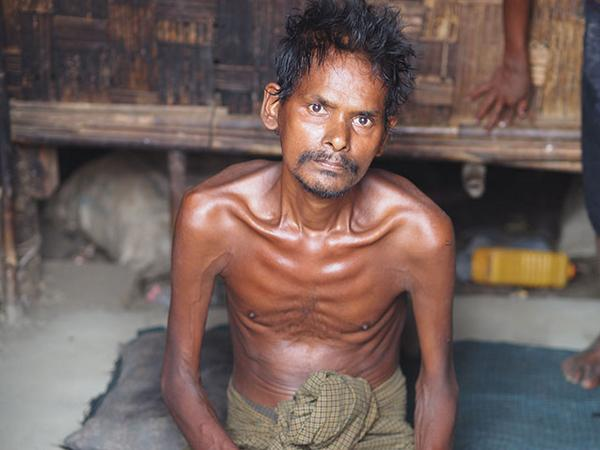 #Myanmar #Rohingya #Muslims trapped in concentration camps fall victim to disease and hunger  http://t.co/U5lEnbspOd http://t.co/XZespPRtEh