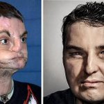 RT @smh: Man who underwent the most extensive face transplant ever performed appears on GQ cover http://t.co/6jCeucKLLJ http://t.co/TRuVbvxZcW