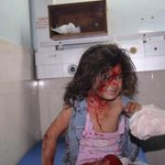 This Palestinian girl took shelter at a United Nations school in #Gaza but Injured in the #Israeli bomb attack http://t.co/xzAuxW9WyH