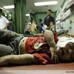 A Palestinian child, wounded in an Israeli strike on a UN school in Beit Lahia, Gaza, lies in Kamal Edwan hospital http://t.co/1tLo549jZb