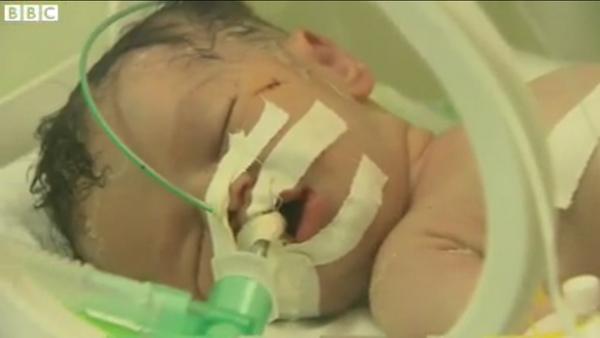 """5日で人生を終える…胎内での10ヶ月 はきっと幸せだったと思いたい。  """"@midoriSW19: 空爆で死んだ女性から帝王切開で生まれたシャイマちゃん、生後5日で亡くなりました。お母さんの隣に葬られたそうです。# Gaza http://t.co/1Z9sUlCOPL"""""""