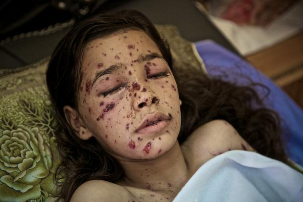 8-year-old Dahlia only just made it after her body was sprayed with shrapnel from an F16 missile. #Gaza http://t.co/zeumK8E9cS