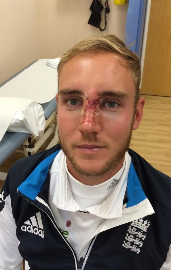 Little bit sore this morning but not too bad! Doc did a great job with the stitches. On to The Oval! (With a mask) http://t.co/PH3kiCqufX