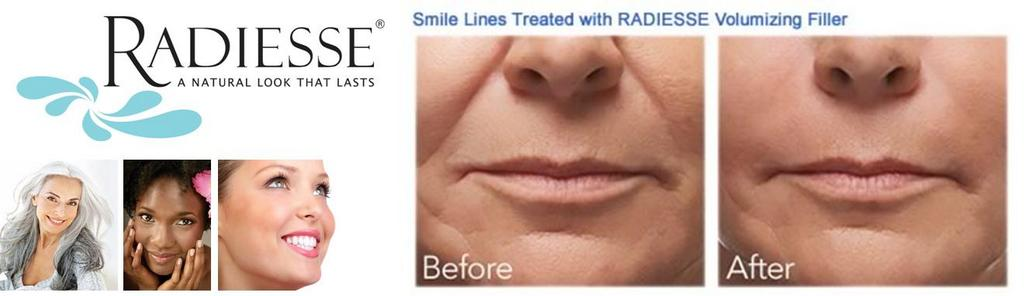 Interested in Radiesse? It's Buy one Get one FREE through the month of August. Give Jenny a call today!!! http://t.co/mn58g9Olec