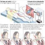 RT @eluniversocom: Pacientes cardiacos de alto riesgo hallan esperanza en procedimiento quirúrgico. http://t.co/Hu2x5vn0i0 http://t.co/3iVZjyJpRu