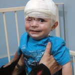 HEARTBREAKING :( Ahmad Abu Taha 10 m old , lost his Right eye with multiple head injuries . #gaza #GazaUnderAttack http://t.co/cOtbxMoMGd