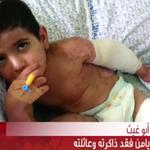 بالفيديو... #غزة: الطفل #يامن فقد ذاكرته وعائلته http://t.co/8Bf6gUbNgn http://t.co/4ifzG0iWGg