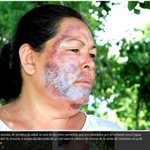 RT @lajornadaonline: .@SSalud_mx vigilará afectaciones a largo plazo por derrame tóxico en #Sonora - http://t.co/piN1QyEck2 http://t.co/rh0QzXOBwd