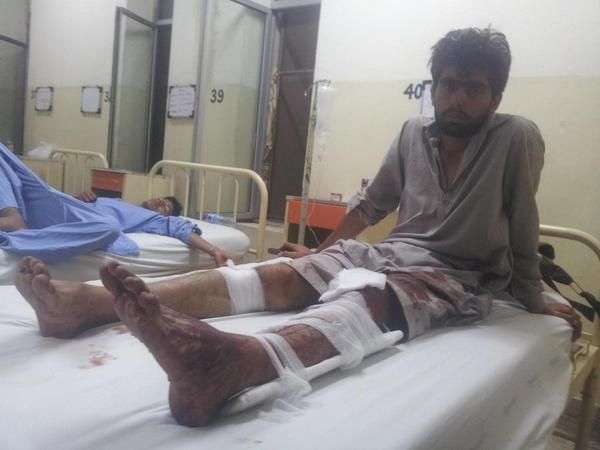 Muhd imran, 25, a Qadri supporter, was shot five times with rubber bullets by police, he says. http://t.co/9MzA7J1zsT