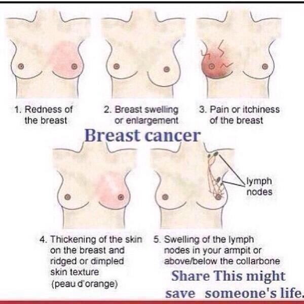 #breastcancerawareness #savealife http://t.co/TBGF5dRdc3