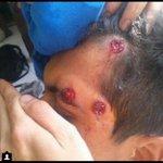 RT @RCTVenlinea: Herido en manifestación de hoy en el Tachira, por represión de la GNB. http://t.co/rgGqu3FFfz vía @TURADIONET2