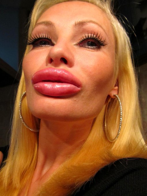 Kisses from my new 5cc #lips #Juvederm #filler ??? http://t.co/uRLOcCzFqm