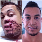 RT @TheSportsDude: Giancarlo Stanton posted a selfie after he got hit in the grill with a baseball—Damn, it looks like it really hurts…. http://t.co/wTjR6gTG3N