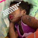 RT @LucioQuincioC: Otro paciente en el Hospital Central de Maracay, esta vez una niña http://t.co/Icv25CiZ1t