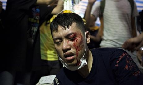 Hong Kong protesters beaten and bloodied as thugs attack sit-in http://t.co/2XzsWnvAk6 http://t.co/RKcvBSnIhV