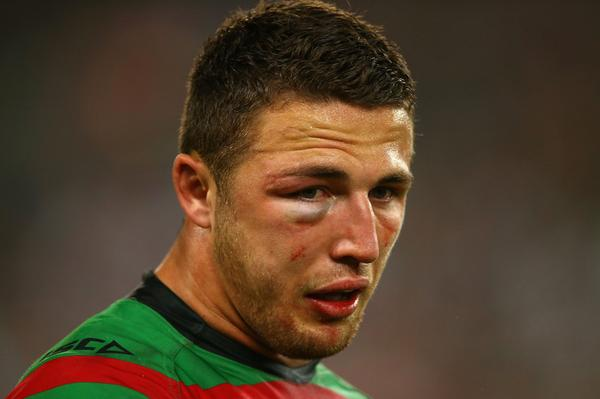 Scans reveal Sam Burgess suffered more than just a fractured cheekbone during the NRL GF http://t.co/HDX7C8wEKM http://t.co/iAI7sZxuJI