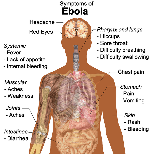 Symptoms of Ebola http://t.co/T5Ug8acssc