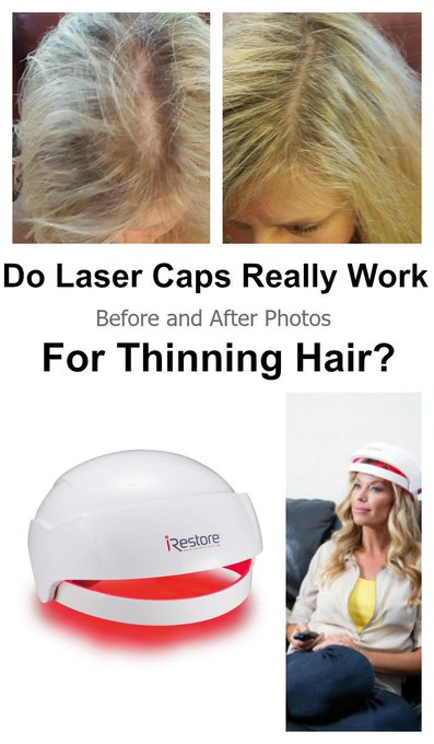 Before After Photos Women: iRestore LLLT Helmet Results