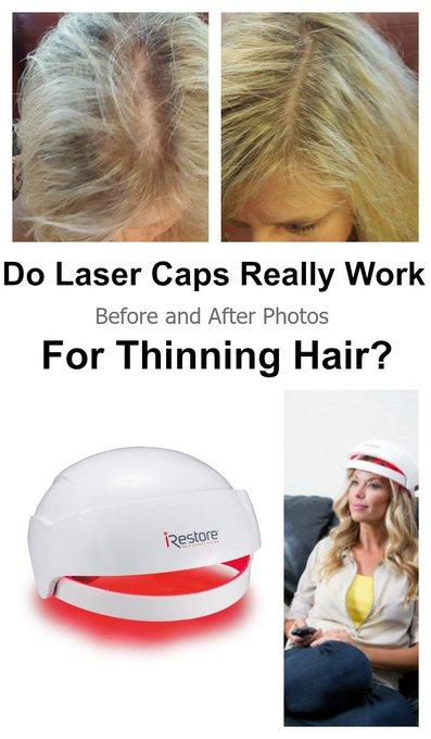 Before After Photos Women: iRestore LLLT Helmet Results