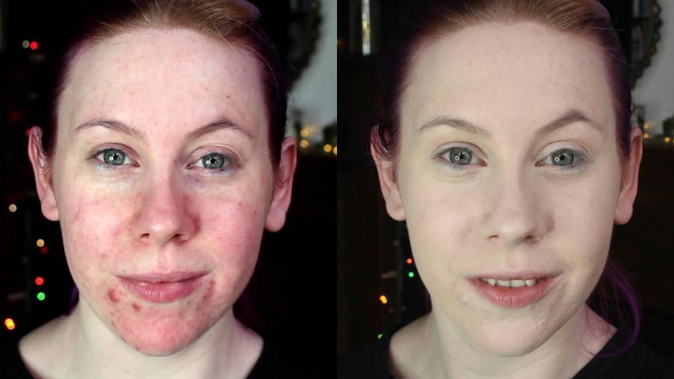 dry acne prone skin