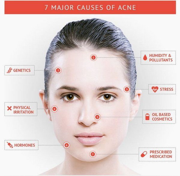 7 Major Causes of Acne...